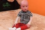 بالصور... طفل يشبه الدمى بسبب حالة نادرة