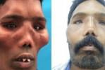 إعادة بناء وجه مريض يعاني من مرض نادر
