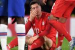 بايرن ميونيخ يخسر خدمات ليفاندوفسكي بسبب الإصابة