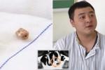 صيني يكتشف سنّا ظل في أنفه لمدة 20 عاما (صور)